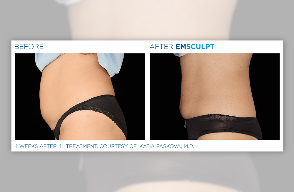 The Exclusive EMSCULPT® Provider in the Upper Valley | Peraza