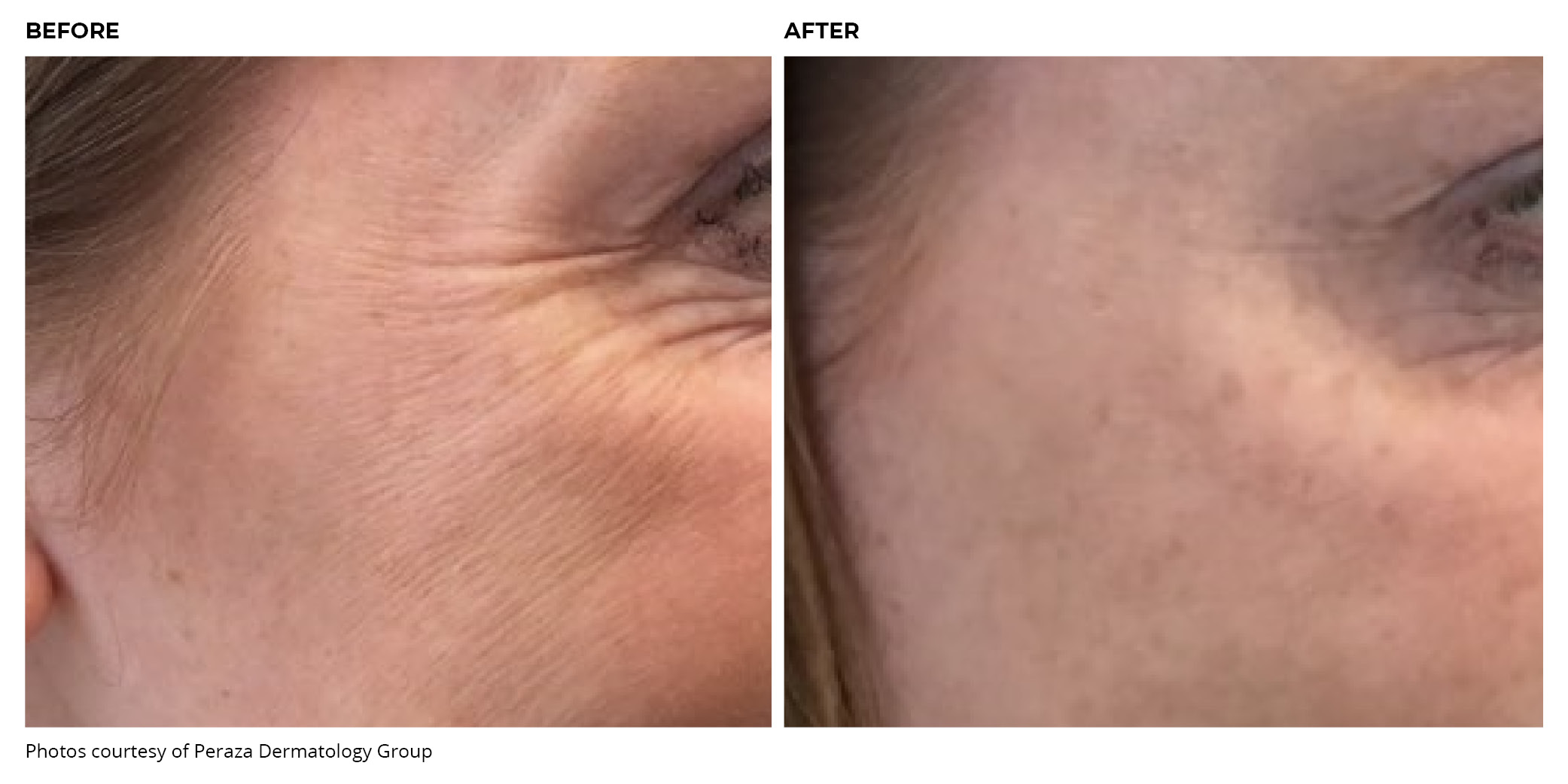 BOTOX Cosmetic Crow's Feet Lines