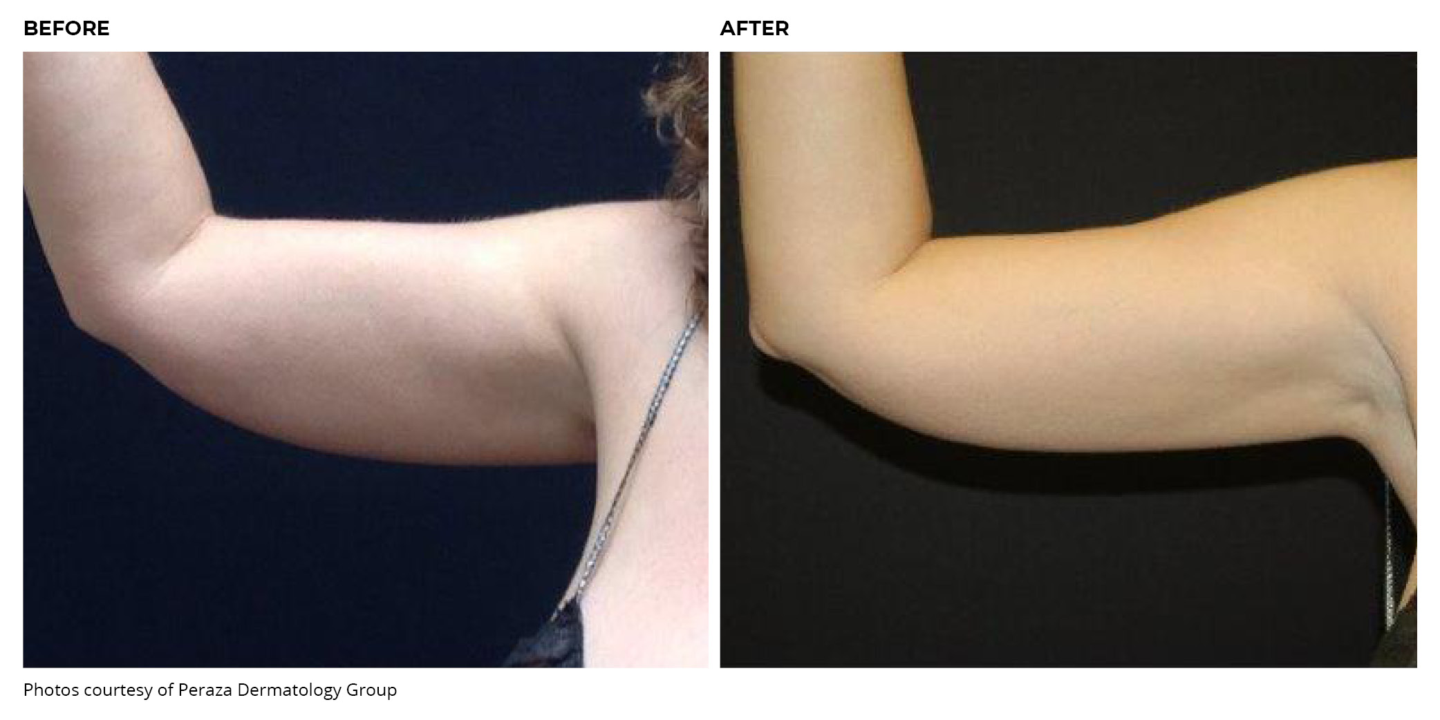 Coolsculpting® Before and After Arm
