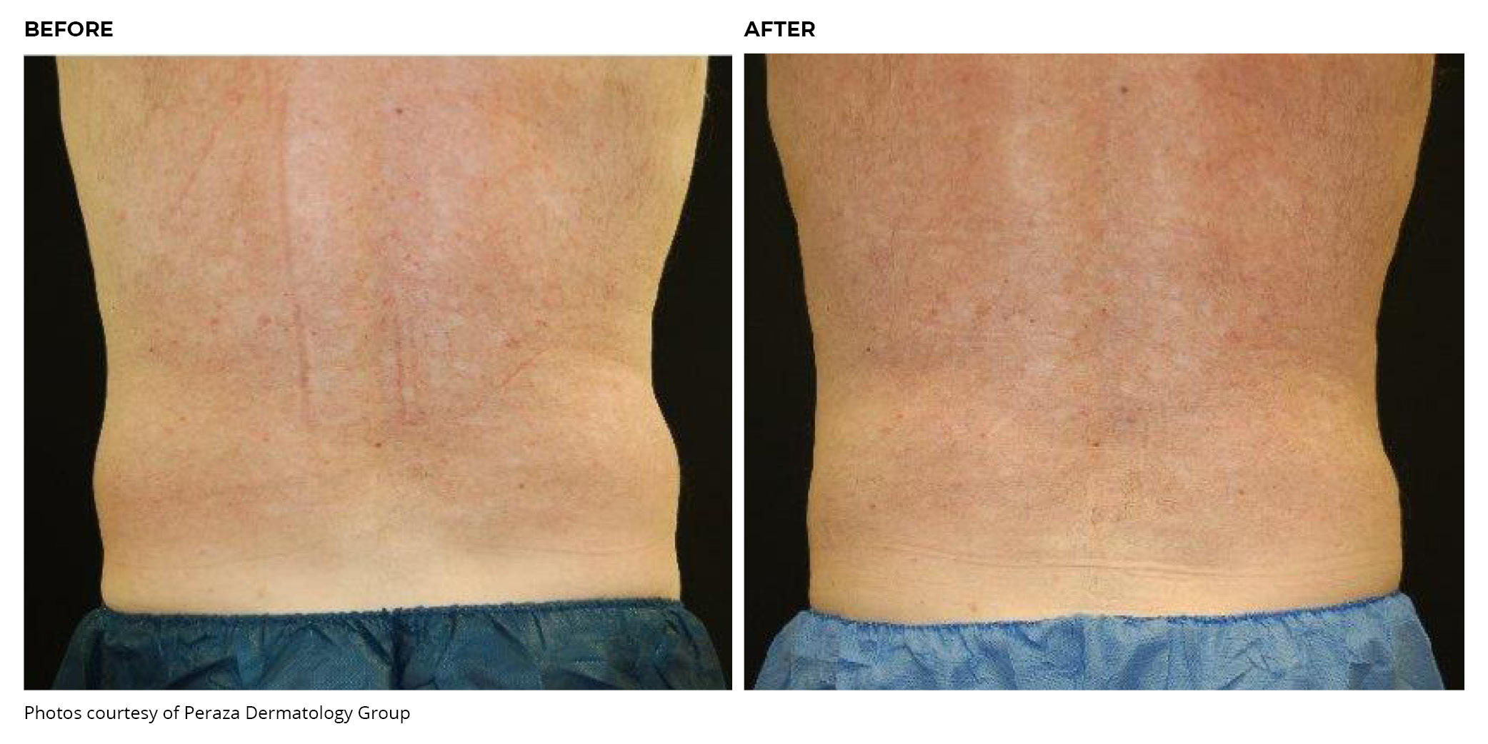Coolsculpting® Before and After Back