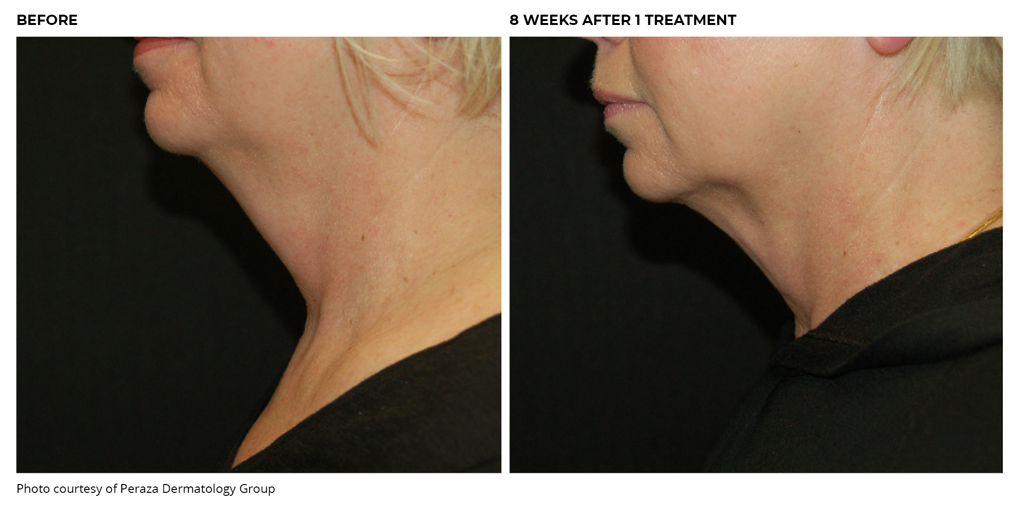 Coolsculpting® Before and After Chin