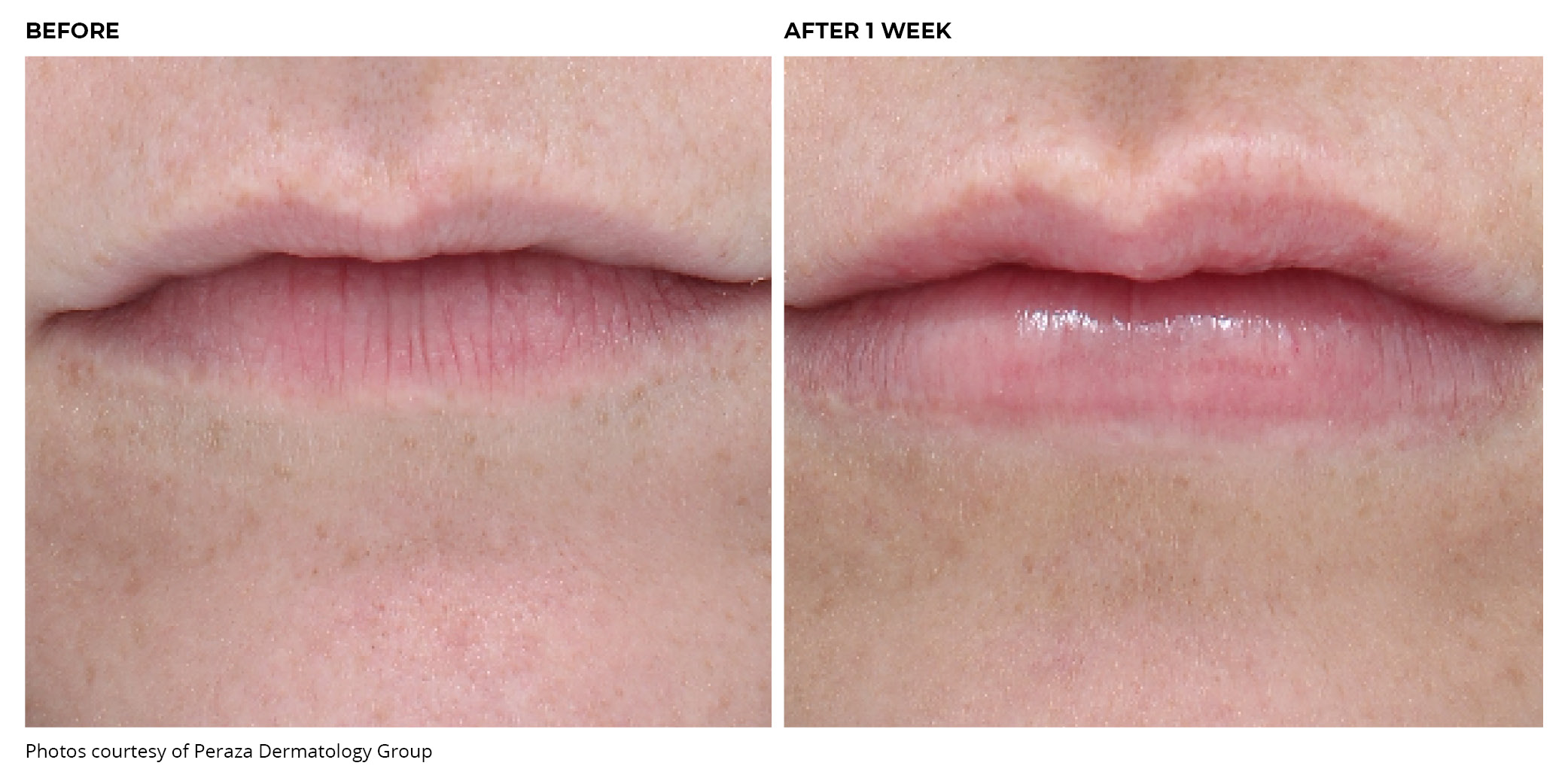 Juvederm Lips Before and After