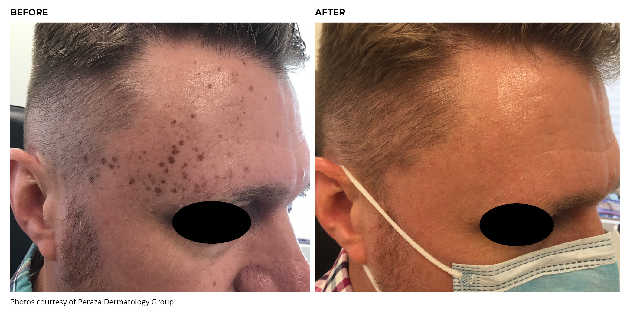 Lumecca IPL Before and After