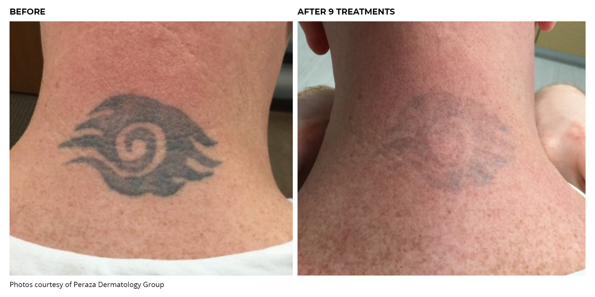 PiQo4 Tattoo Before and After